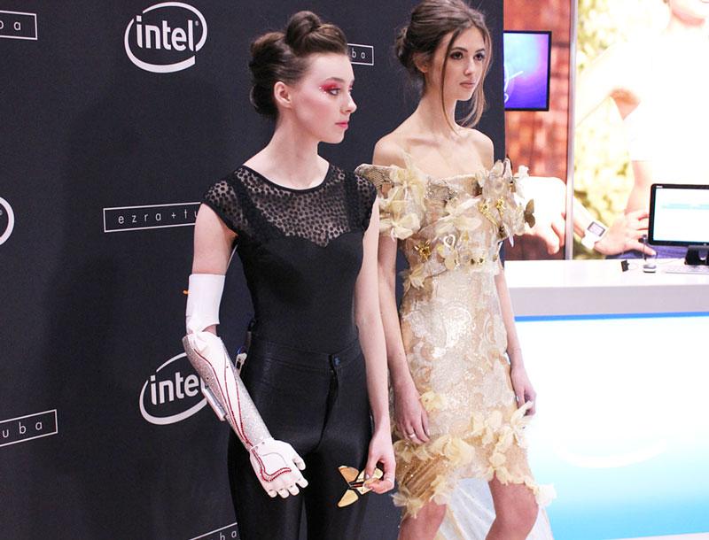 Openbionics_Grace_Mandeville_prosthetic_arm_hand_1