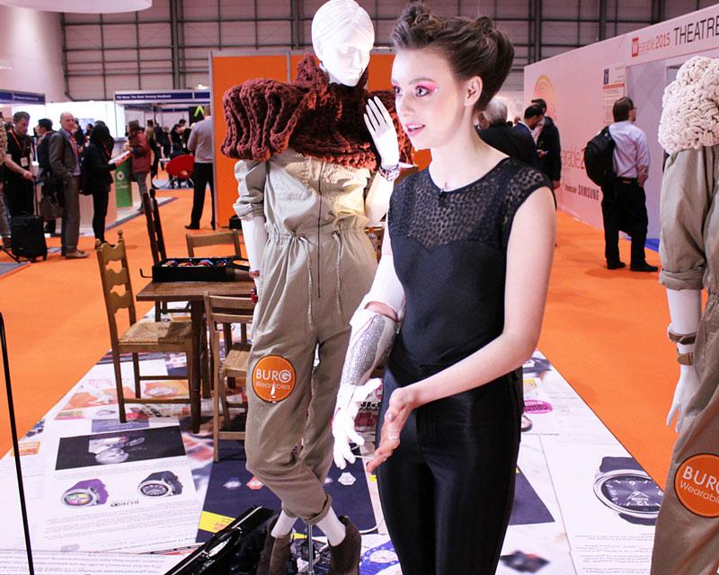 Openbionics_Grace_Mandeville_prosthetic_arm_hand_2