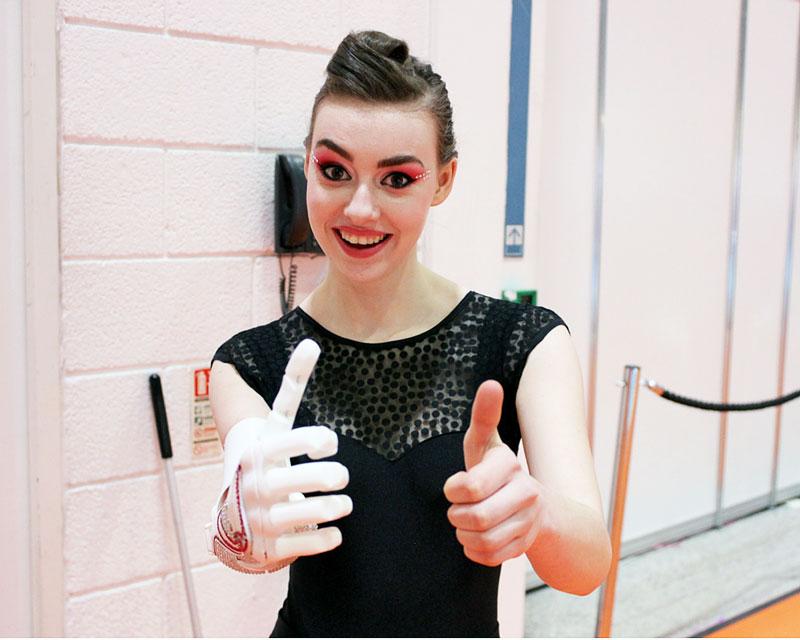 Openbionics_Grace_Mandeville_prosthetic_arm_hand_4