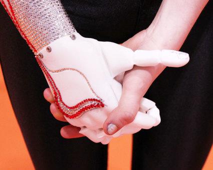 Openbionics_grace_mandeville_prosthetic_arm_hand_5