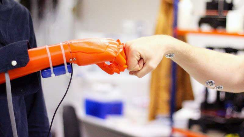 hands_Open_Bionics_prosthetic