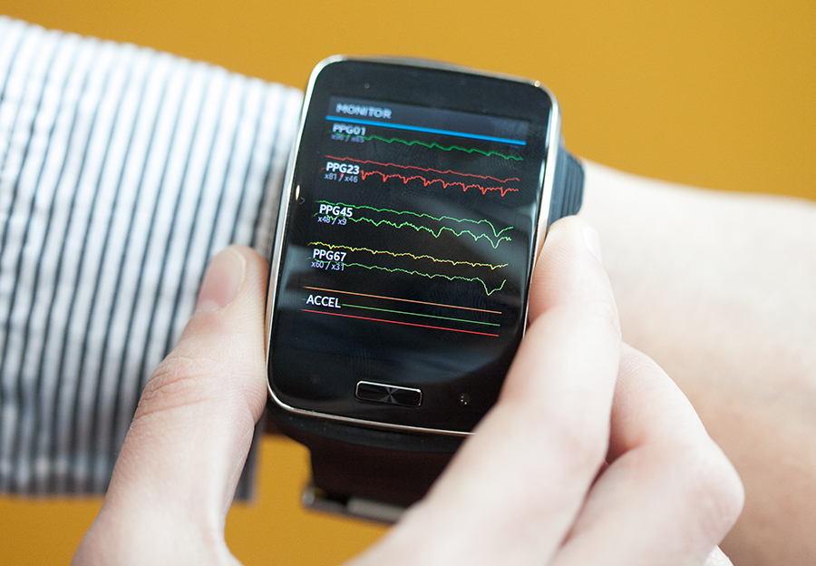 Samsung Simband. Image: Jason Dorfman, MIT CSAIL