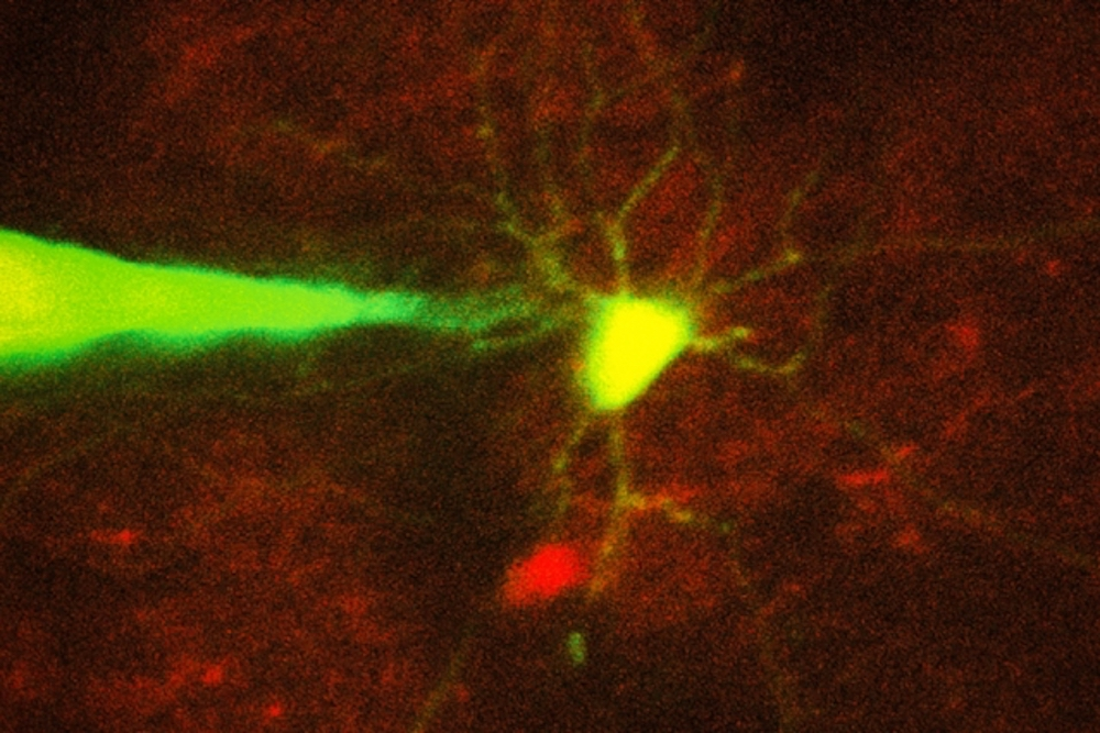 Robotic system monitors specific neurons