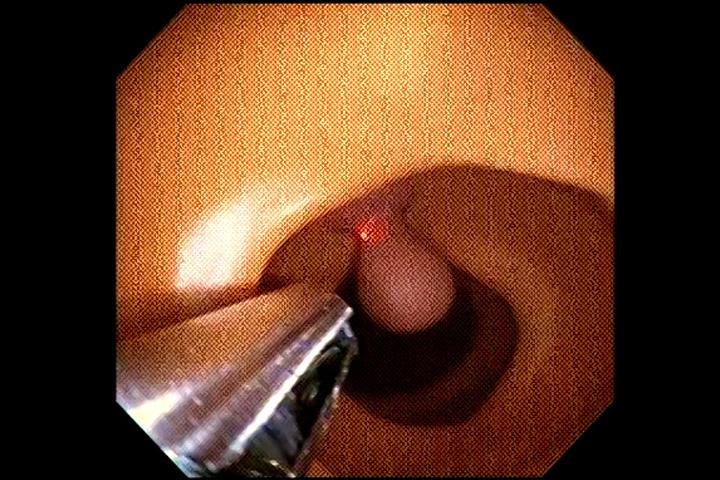 Laser inside a colon